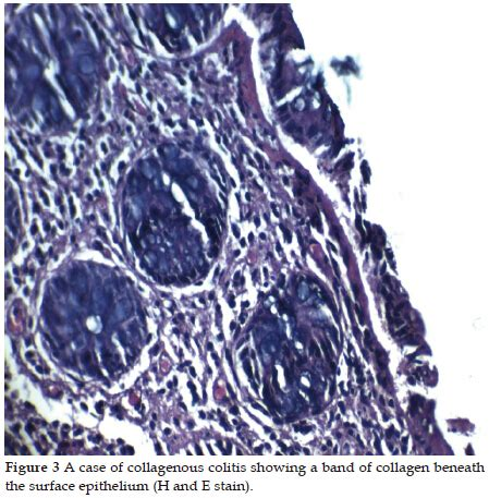 yield  mapping biopsy  apparent endoscopically