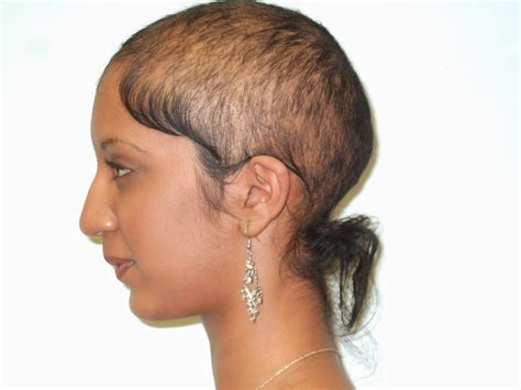 hair style for female balding hair angie blogs tips