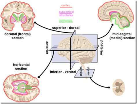3 sections of the brain neurolearn human brain directions cross sections and