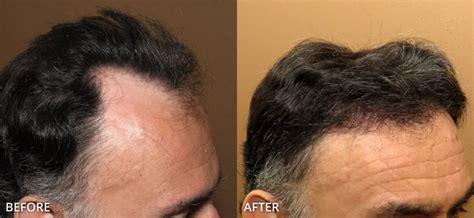 neograft hair transplant nyc fue hair restoration in neograft hair transplant nyc fue hair restoration in