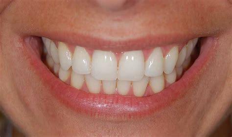 Pemutihan Gigi Di Dokter Gigi bleaching di dokter gigi dan manfaatnya orange dental