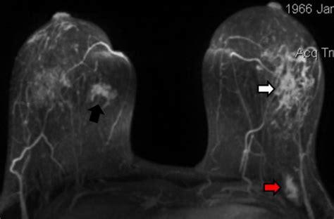 invasive lobular carcinoma   left breast  outer quadrant  scientific