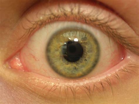Eyeball By Thejabus On Deviantart Eyeball Pics