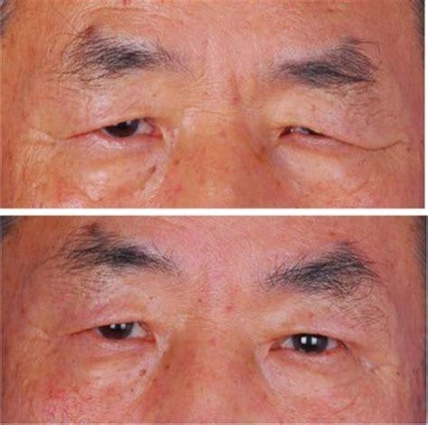 eyebrow lift korea eyebrow lift through incisions above the eyebrows if the