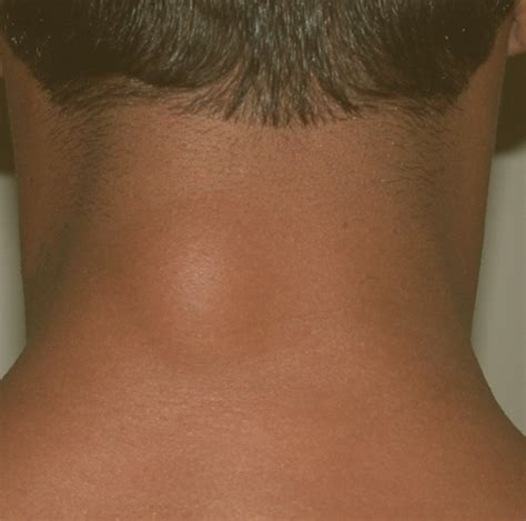 lump on the gallery for gt lump back of neck lymphoma