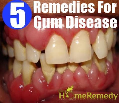 pyorrhea gum disease treatment