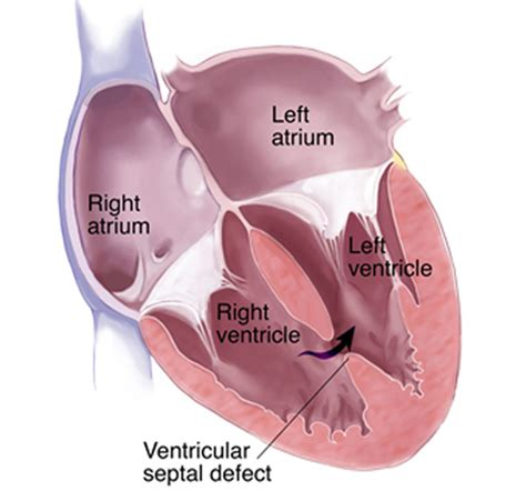 design defect definition ventricular septal defect vsd treatment definition