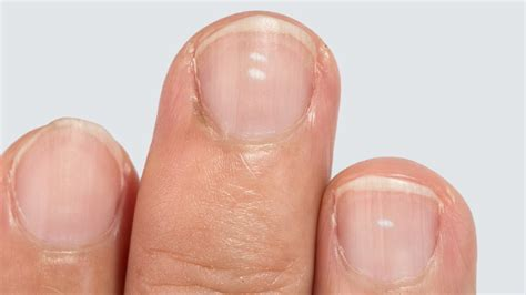 White Nail Beds by What The White Spots On Your Fingernails Reveal About Your