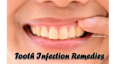 tooth infection how to eliminate a tooth infection at home my health tips
