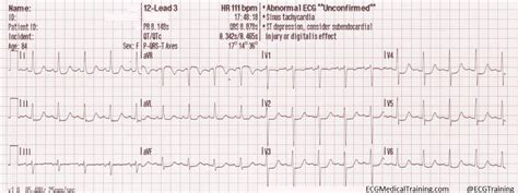 ecg pattern meaning ischemia does not localize what does it mean ecg