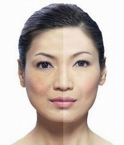 Harga Merkuri Klorida mengetahui kandungan berbahaya pada pemutih wajah