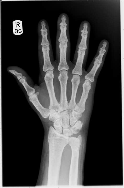 x ray x rays in medicine fizzics