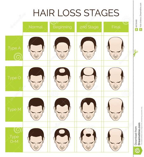 hair and head types hair loss stages and types for men stock vector image