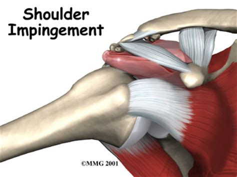 Bench Press Procedure Impingement Syndrome Houston Methodist