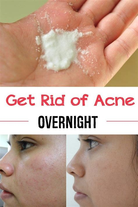 Get Rid Of Acne by 1000 Images About Tips On Lotion Home