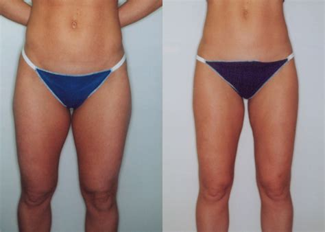 liposuction inner thighs thighs liposuction review