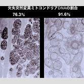 mitochondrial-myopathy