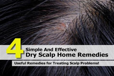 4 simple and effective scalp home remedies