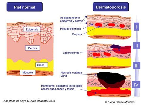 conejera en una herida heridas por dermatoporosis o insuficiencia cut 225 nea cr 243 nica