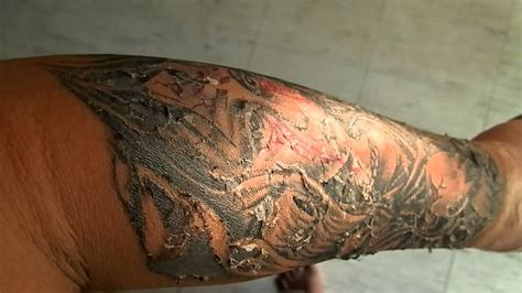 tattoo peeling process healing tattoo skin peeling youtube