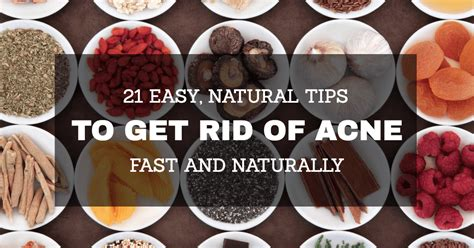 how to get rid of acne pimples fast 21 easy tips