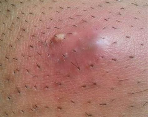 how to treat ingrown hairs in the chin infected ingrown hair pictures symptoms treatment removal