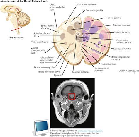 brain stem cross sections brain stem and cerebellum neupsy key