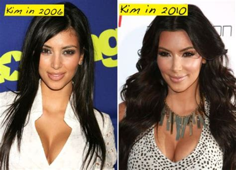 kim kardashian plastic surgery before after pictures 2015 kim kardashian plastic surgery before after pictures 2013