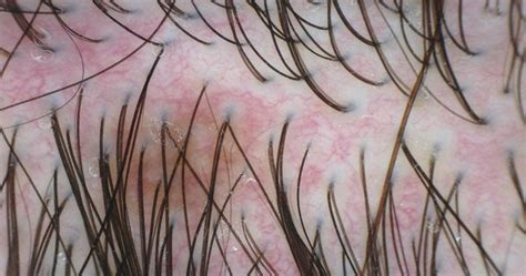 acne en el cuero cabelludo problemas cuero cabelludo acne en el cuero cabelludo