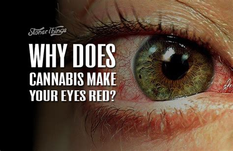 why does a your why does cannabis make your stoner things
