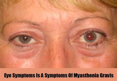 Mcgowans Droopy Eye Problem by Identifying Myasthenia Gravis Symptoms Symptoms Of