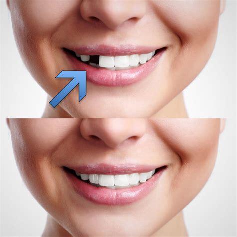 temporary tooth repair kit temp dental repair replace