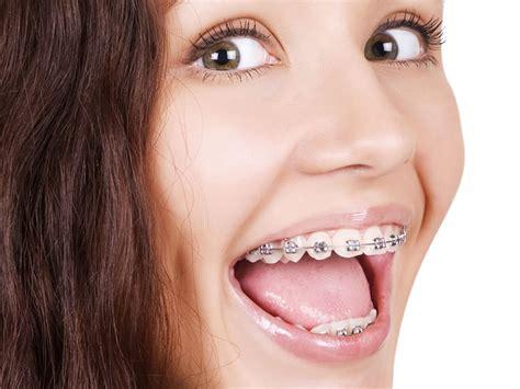 apparecchio interno costo apparecchio denti adulti trattamento marmo cucina