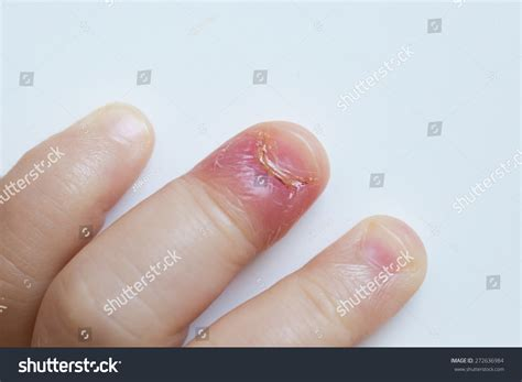 swollen nail bed swollen nail bed royalty free paronychia swollen finger