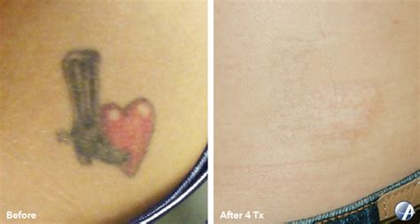 how to speed up tattoo removal four ways to speed up laser removal inkaway laser