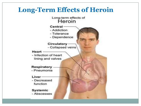 Opiate Detox Risks by Heroin Detox Symptoms Side Effects Recovery