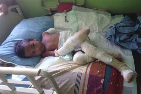 34 Bocah Yang Menggemparkan Dunia bocah 5 tahun yang terjatuh di gundukan batubara menyala itu meninggal dunia mongabay co id
