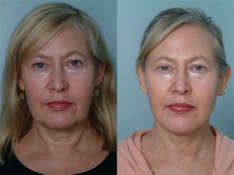 sagging jowls treatments for sagging jowls jowl reduction treatment of neck laxity and jowls with laser tightening
