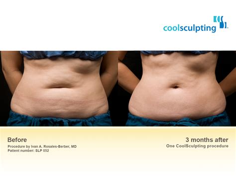 lowest price cool sculpting zeltiq thailand