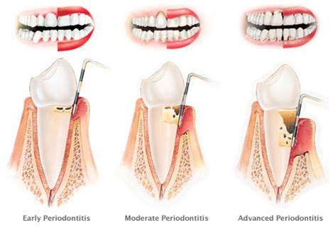 Gingivitis and Periodontitis   Smileinsight Dental   San