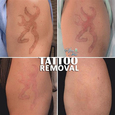 tattoo can be removed our another happy client complete removal can