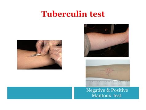 test mantoux skin tests and their applications ppt