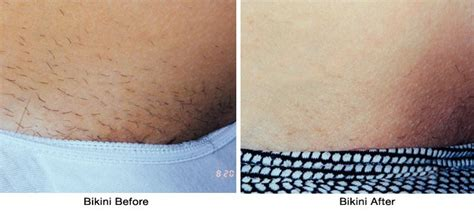 brazilian wax photos before and after brazilian wax before and after tumblr www pixshark com