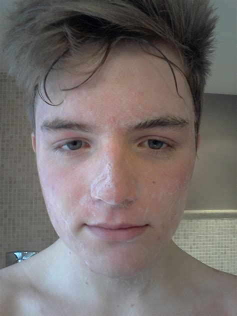 Detox After Accutane by Acne My Experience Dying For Clear Skin Dann 233 Treatment