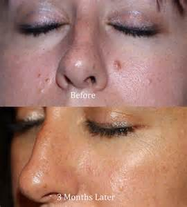 types of moles cosmetic plastic surgery
