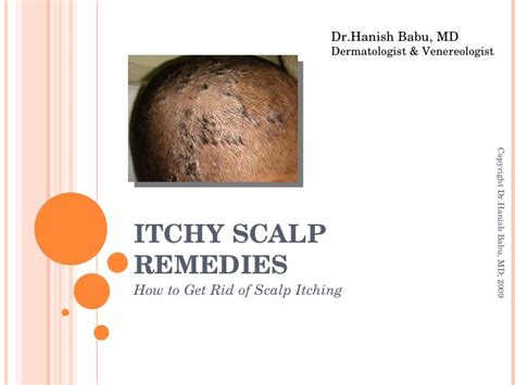 itchy home remedy itchy scalp remedies