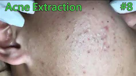 Heroin Detox And Acne by Blackheads Removal Acne Extraction On The