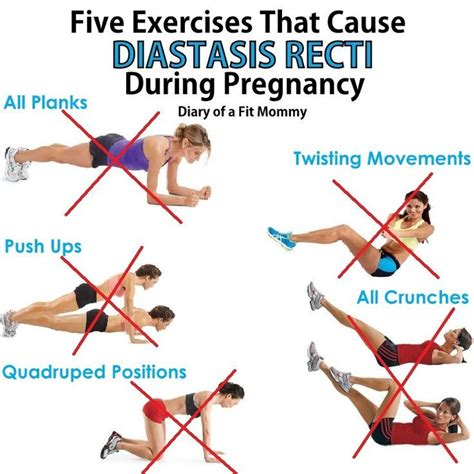 5 exercises that cause diastasis recti during pregnancy
