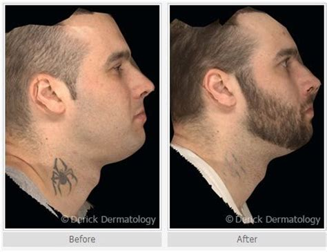 face tattoo removal before and after 17 best images about removal before and after on
