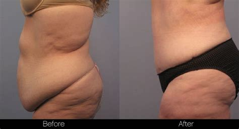 can i have a tummy tuck after c section 50 best images about tummy tuck on pinterest belly